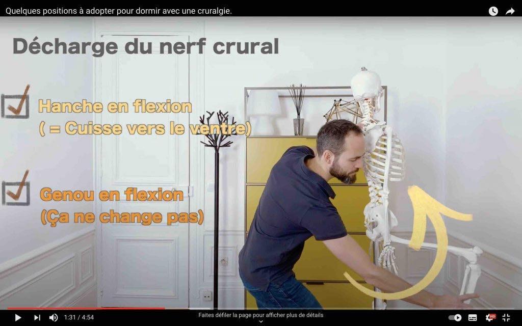 Comment diminuer la tension du nerf crural