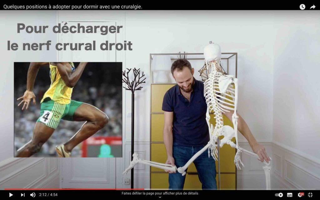 Décharge du nerf crural