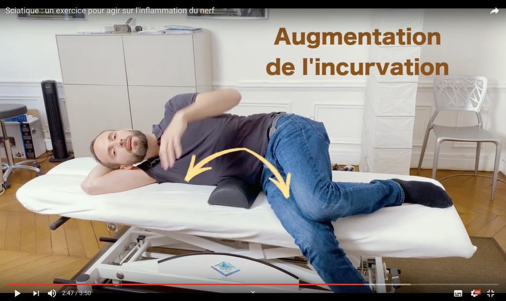 Comment diminuer l'inflammation du nerf sciatique