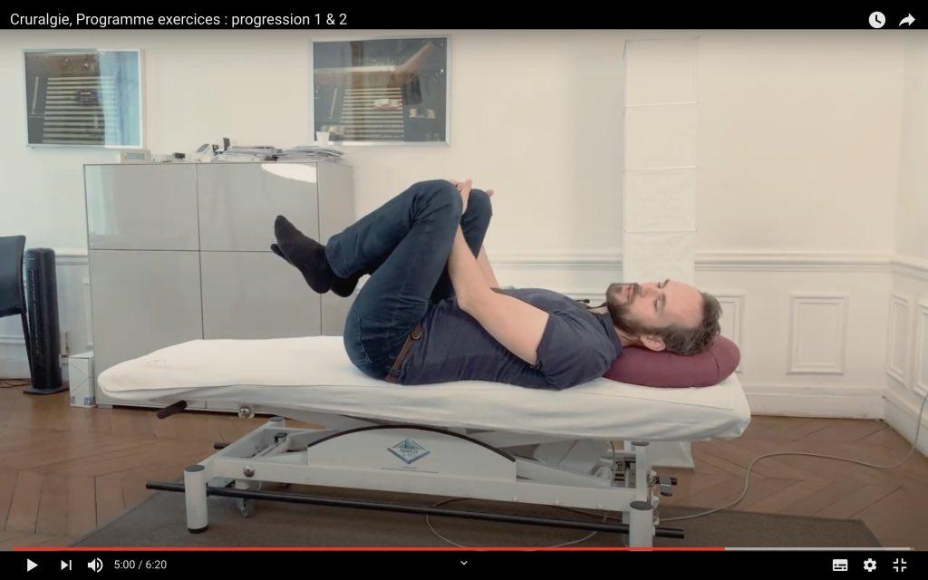 Décharge du nerf crural gauche