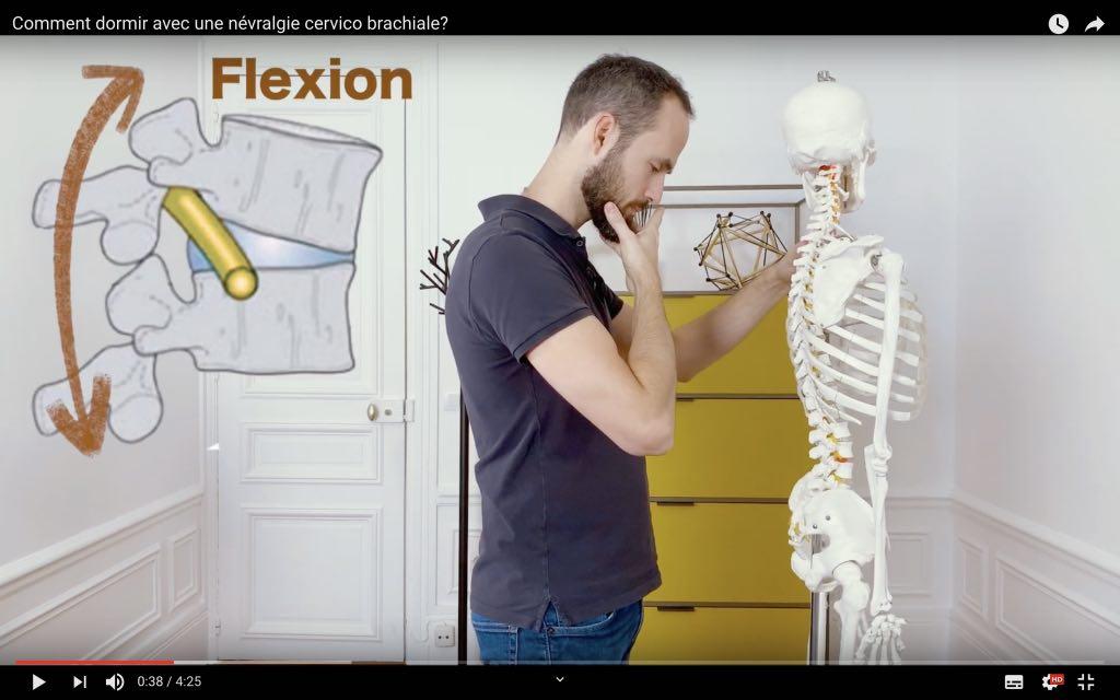Soulager la NCB avec une flexion du cou