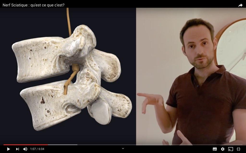 Nerf spinal entre L4 et L5